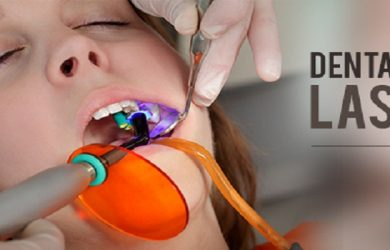 Lasers Replace Drills for Cavity Fillings