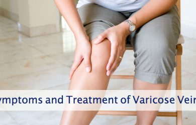 Symptoms and Treatment of Varicose Veins